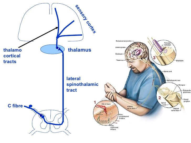 pain pathway - Lateral spinothalamic tract, thalamus, and sensory cortex - Google Search