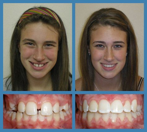 Another Beautiful Example of Before and After #Braces From Our Office