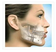 #bone #graft   #gum #disease http://www.oasisdentalmilton.com/dental-implants/bone-grafting/