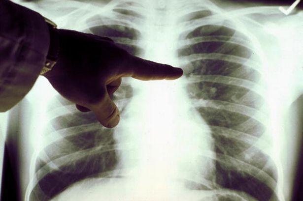 Seit US-Präsident Nixon 1971 den »Krieg gegen Krebs« ausrief, sind die Zahlen der Krebserkrankten kontinuierlich gestiegen. Die unglaublich kostspieligen Krebstherapien, die, so war es versprochen …