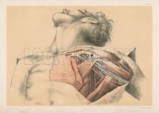 ultrasound guided ilioinguinal and iliohypogastric nerve block