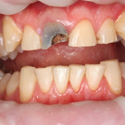 HOW TO TREAT EXCESSIVE TOOTH WEAR