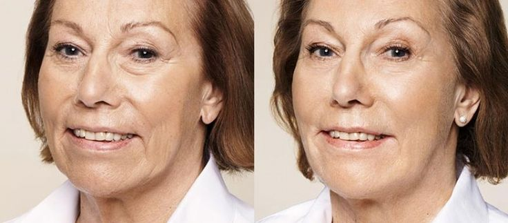 Dermal fillers are worth it. You'll be pleasantly surprised to find out that dermal fillers cost less than you may think
