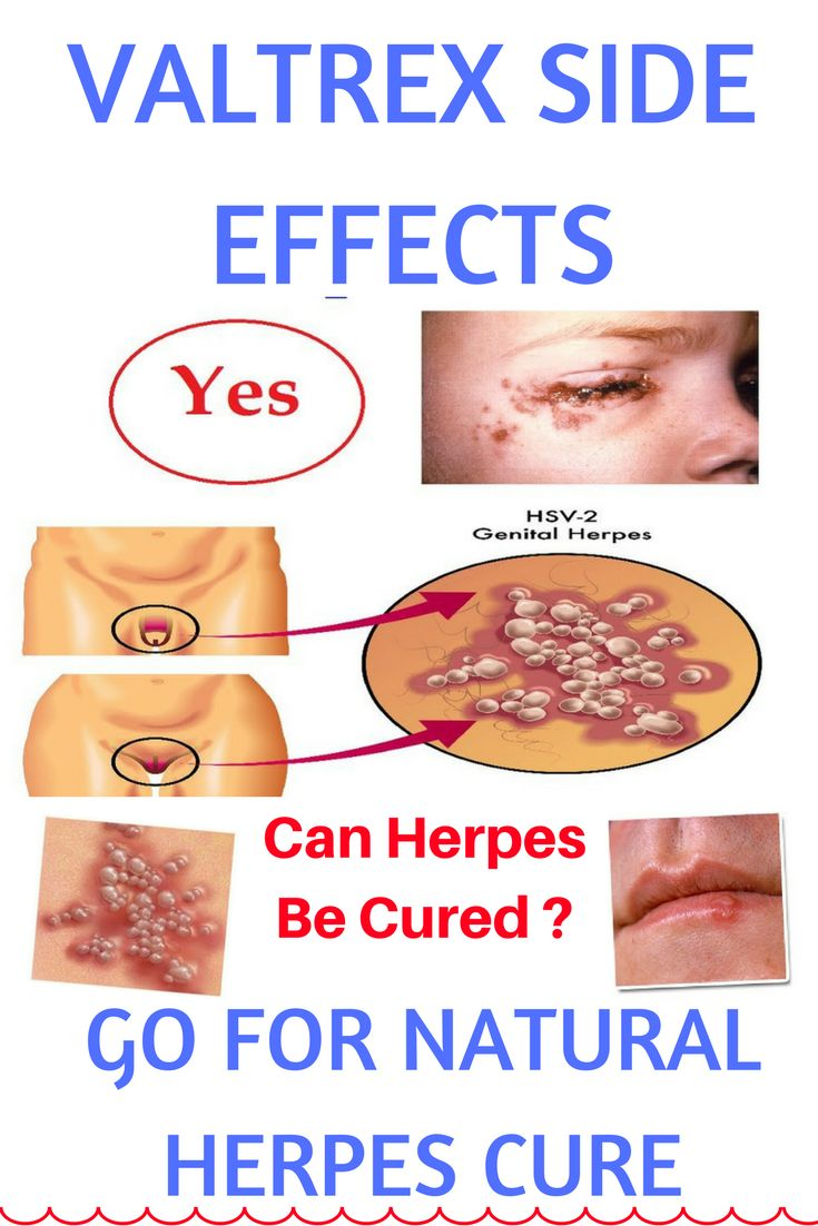 Valtrex, otherwise called valacyclovir, is an antiviral pharmaceutical used to treat contaminations with herpes zoster (shingles), herpes simplex genitalis (genital herpes), and herpes labialis (mouth blisters). Valtrex is accessible in non specific shape. It is taken as caplets that might be brought with or without nourishment. In this dicussion we will discuss Valtrex reactions.
