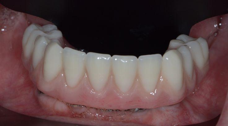 Prothèse sur implant fixe ou amovible?
