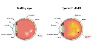Macular degeneration is an eye disease that causes vision loss. It is a painless eye condition that causes you to lose central vision, usually in both eyes. This disease brings about some symptoms such as difficulty in reading, obscure vision, obliterated colors appearance.  To Read More - http://www.nutritionforest.com/blog/macular-degeneration-causes-ways-prevent/