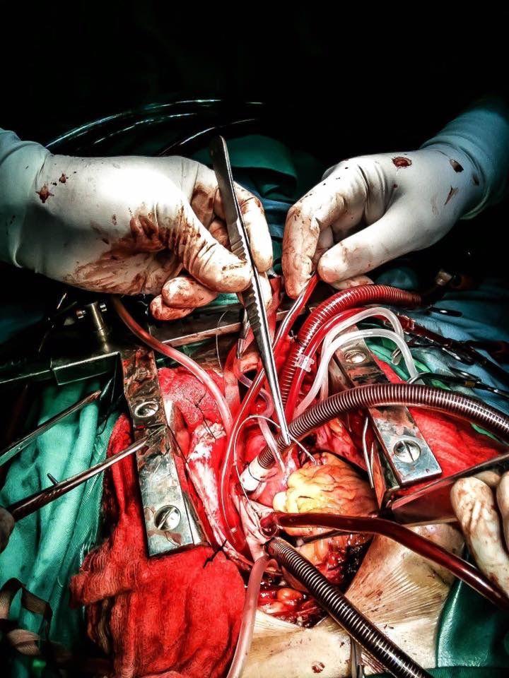 On pump. Open heart surgery. Bypass. CABG.