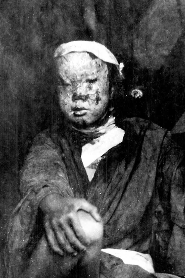 Atomic Bombings – 6th & 9th of August 1945 Hiroshima and Nagasaki ...