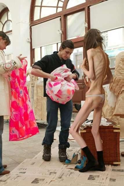 comment la mode rend les filles anorexiques !