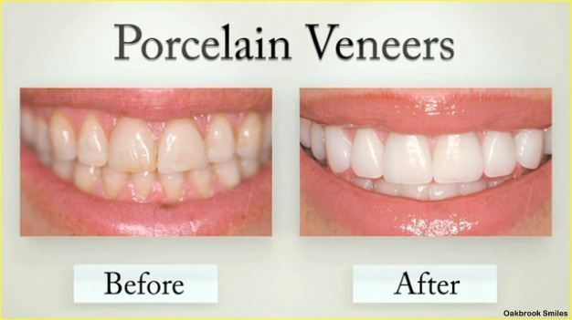 Porcelain Veneers are very thin pieces of durable tooth-shaped ...
