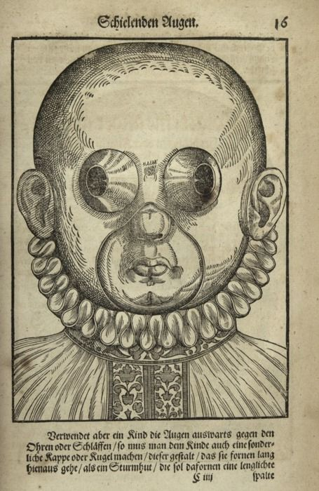 Georg Bartisch -Ophthalmodouleia (Dresden, 1583), earliest printed work devoted to diseases of the eye