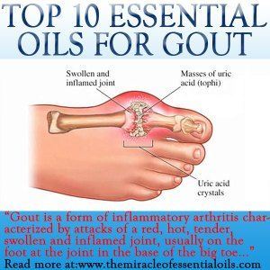 Gout can be very painful and take a toll on your body. Using essential oils for gout is a valuable natural way to minimize the pain & inflammation as well