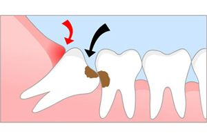 Болезни и лечение зубов мудрости
