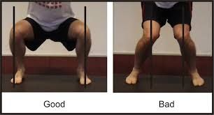 Why Do My Hips Hurt When I Squat? Femoral Acetabular Impingement: Part 2