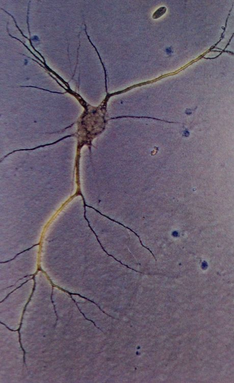 The simple beauty of a human neuron