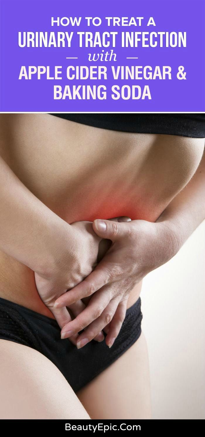 How to Treat Urinary Tract Infection with Apple Cider Vinegar & Baking Soda