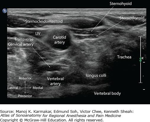 Image result for longus colli muscle ultrasound