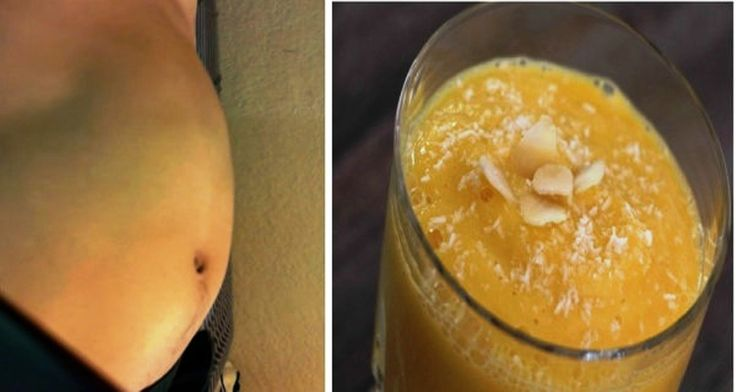 A Drink That Relieves Bloating Effectively and Helps to Lose Weight