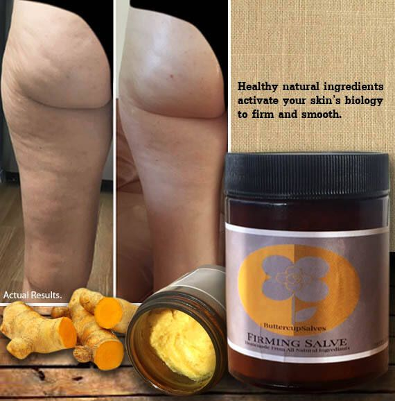 Cellulite Reducing, Skin Firming Salve 9oz by Buttercupsalves on Etsy https://www.etsy.com/listing/544490747/cellulite-reducing-skin-firming-salve