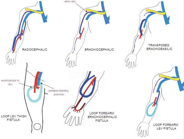 Av fistula anatomy