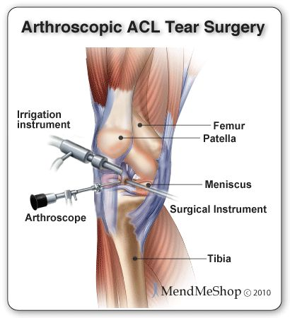 ACL Surgery - Tips, Advice & Preparation