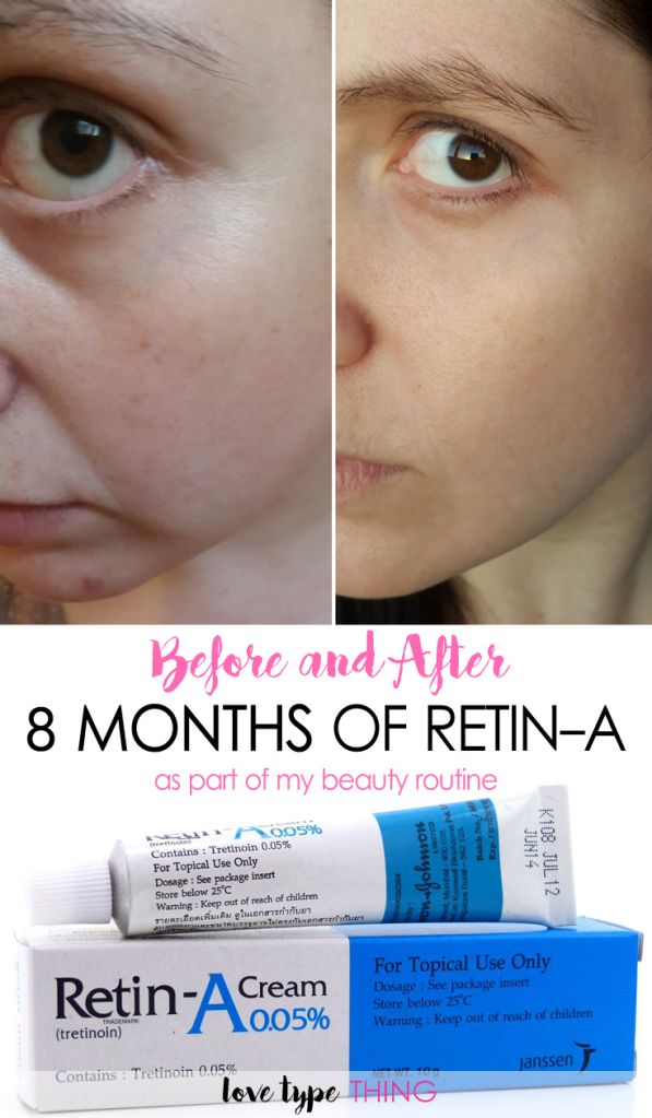 Before and After Retin-A - 8 months results