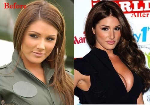 Lucy Pinder Plastic Surgery Before and After