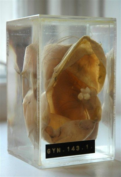 Dermoid cyst (cystic teratoma) with fully developed tooth and hair. UCL Pathology Collections. A dermoid cyst is a saclike growth that is present at birth, but may not be noticeable until much later. It contains structures such as hair, fluid, teeth or skin glands that can be found on or in the skin. Dermoid cysts grow slowly and are not tender unless ruptured. They usually occur on the face, inside the skull, on the lower back and in the ovaries.