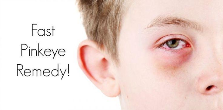 pinkeye remedy