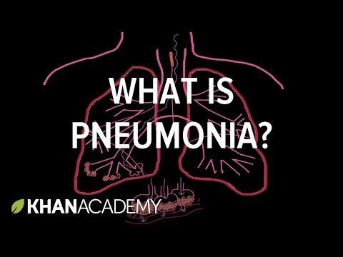 Understanding Pneumonia And Pleurisy