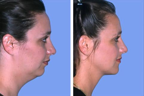 Corrective Jaw Surgery, Facial and Neck Liposuction - Plastic Surgery Spy