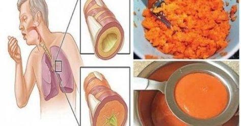 Υγεία - Σπιτική αρχαία συνταγή σιροπιού που απομακρύνει το φλέγμα από τους πνεύμονες και θεραπεύει το βήχα! Ο βήχας είναι ίσως το πιο ενοχλητικό πράγμα, πέρα από τ