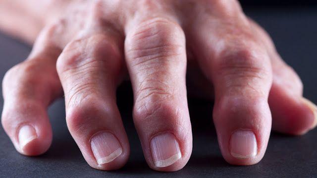 Sănătate365 : Remedii Casnice Pentru Artrita Mâinilor