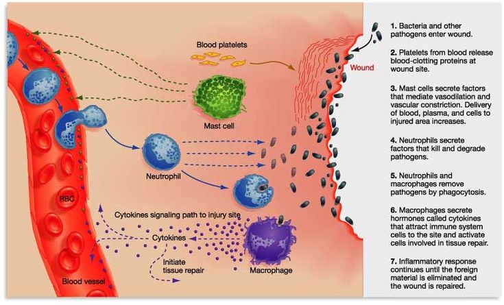 The second line of defense in the innate immune response: inflammation & phagocytosis (neutrophils & macrophages)