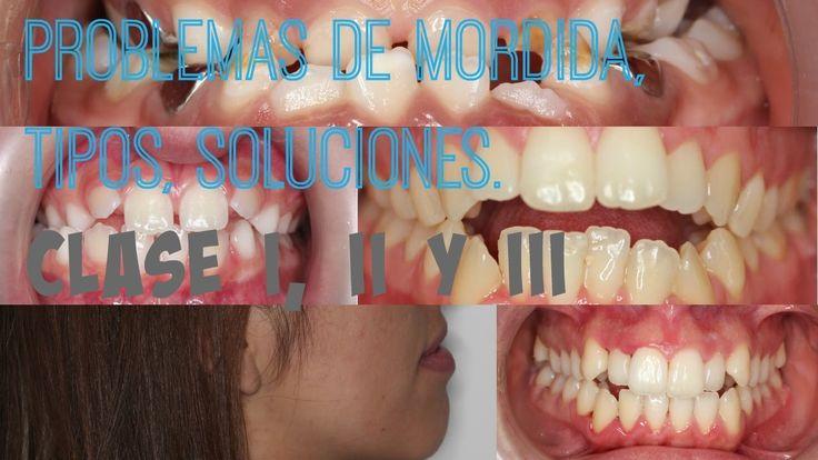 ¿Sabes qué tipos de #problemas de #mordida hay? La doctora Tordera os habla de sus tipos y soluciones: #ortodoncia #sonrisaunica #sonrisaferrusbratos #maloclusion