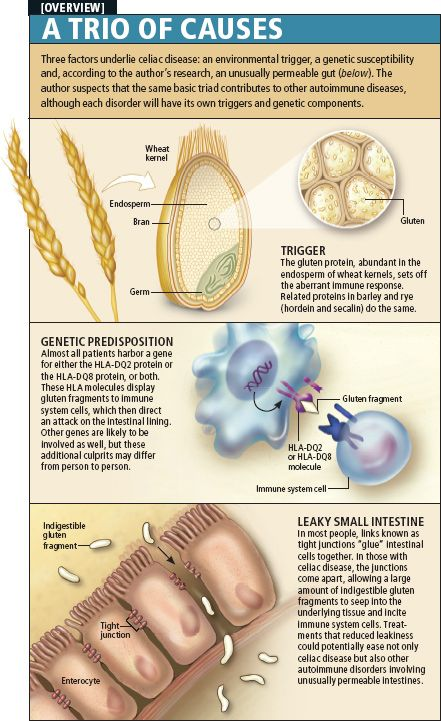 Thre factors underlie celiac disease: an environmental ...