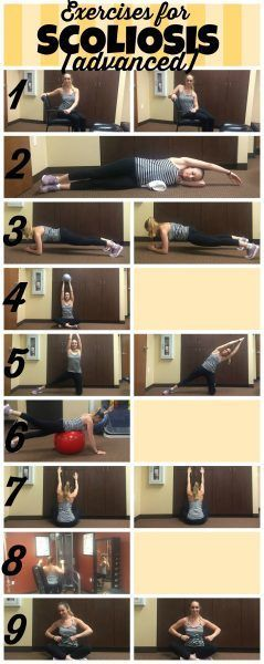 Learn the best exercises for scoliosis and which scoliosis exercises to avoid. These two workouts share the best scoliosis stretches and strengthening.