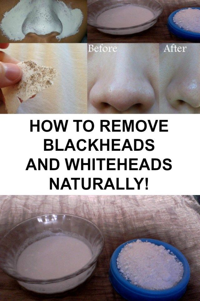 """Blackheads also known as """"open comedones"""" are small dark spots on the skin. If the comedone is closed, it actually is a whitehead."""