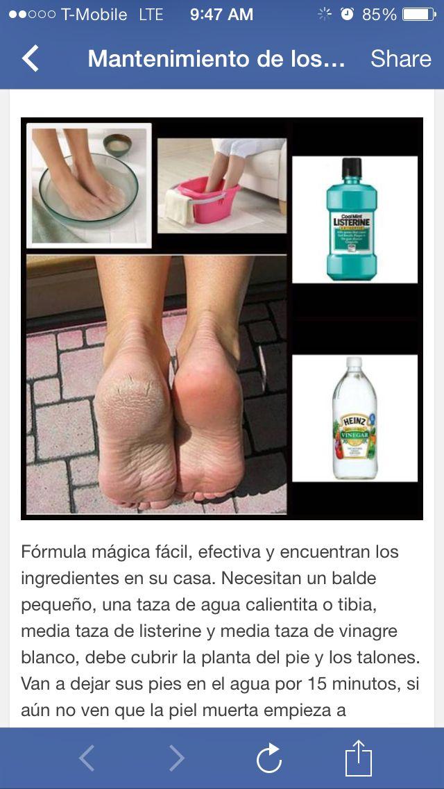 Remedio para los pies resecos y piel muerta