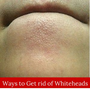 Get rid of white heads