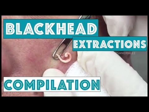 The Big blackhead Removal | How To Remove Blackheads by Using the Blackhead Removal Tool - YouTube