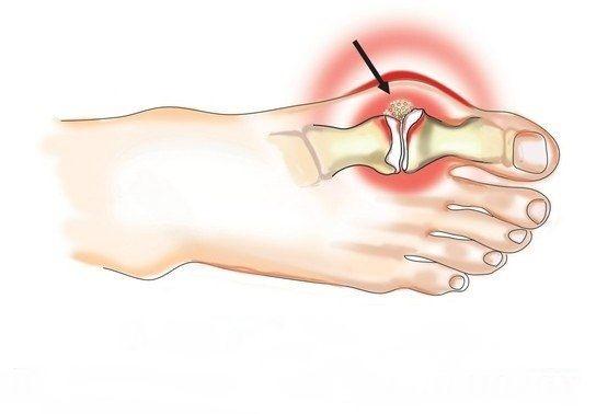 Метод Штаба: Как убрать шишки на ногах