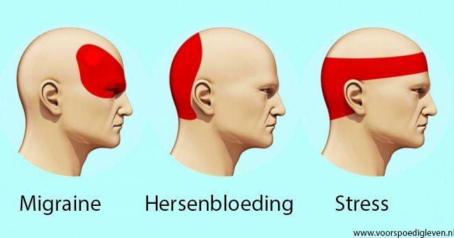 Op deze manier ben je binnen 5 minuten van je hoofdpijn af! Artsen raden deze manier aan, het werkt uitstekend! Wat een werking.