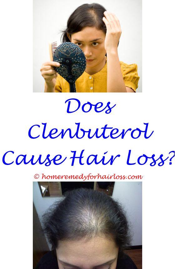 saw palmetto 1000 mg hair loss - hair loss treatment 2018.prp treatment hair loss pompano beach florida synalar for hair loss tong tong hair loss entrance exams 4678623369