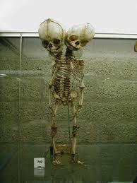 Lugares terrorificos: Museo de Historia de la Medicina Myuttera, el museo maldito