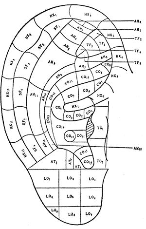 Areas of the ear and their corresponding body parts. Click to download a PDF with more information