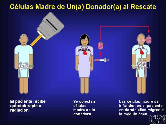 Donación de células madre