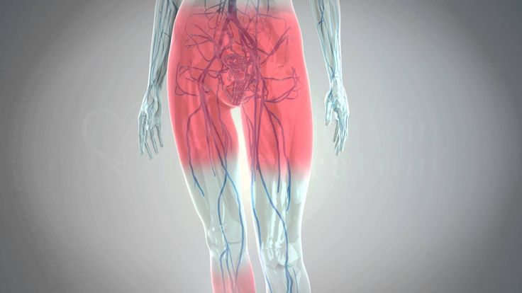 Křečové žíly jsou velmi častým problémema jejich příčiny jsou různé. Jedná se o nepříjemné onemocnění na dolních končetinách, které dokáže potrápit i po estetické stránce. Nejčastějšími příčinami vzniku křečových žil jsou náhlé hormonální změny, stárnutí, genetika, nedostatek nebo omezení pohybu a jiné. Žilní onemocnění vzniká tehdy, když žíly nedokáží dostat krev z dolních končetin do
