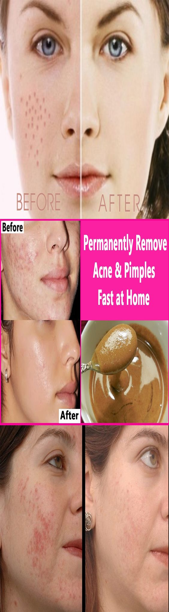 home remedies for pimples marks, how to remove pimples naturally, pimple treatment for oily skin, pimples on face treatment at home in hindi, how to remove pimples in one day, how to cure acne naturally in 3 days, how to remove pimples naturally and permanently, how to cure pimples in one day,