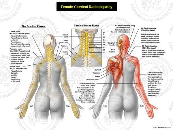 Radiculopathy | neural anatomy of the upper body and multilevel cervical radiculopathy ...